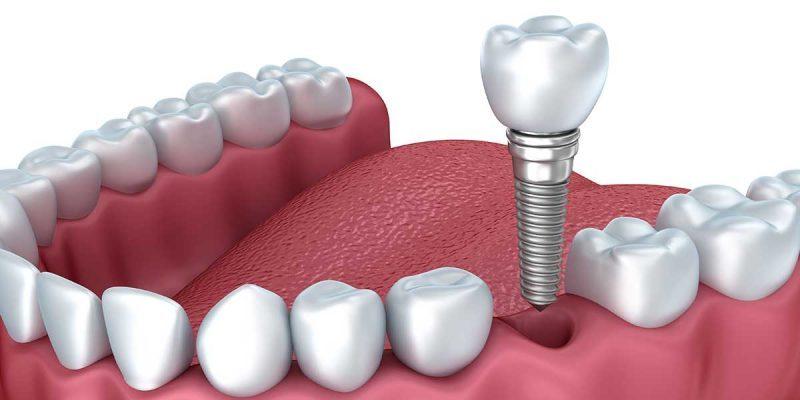 تفاوت انواع ایمپلنت دندان - کاشت دندان چیست