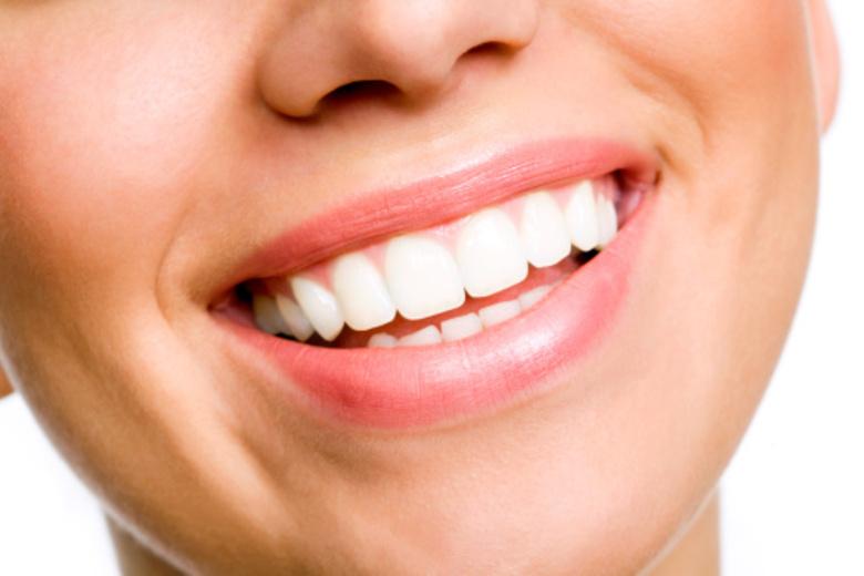 عوارض کامپوزیت ونیر - دندانپزشکی زیبایی چیست