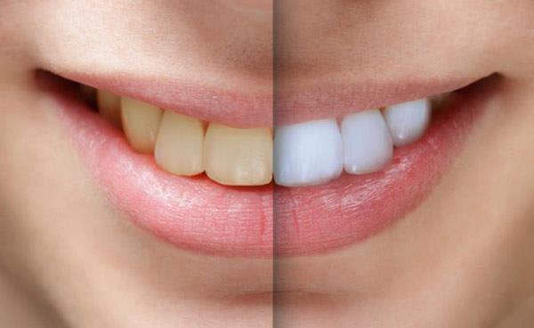 بلیچینگ - دندانپزشکی زیبایی چیست