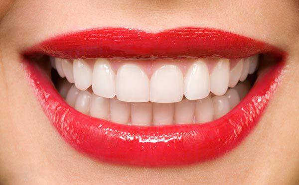 لمینت دندان - دندانپزشکی زیبایی چیست