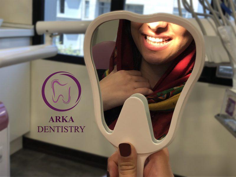 ونیر کامپوزیت - دندانپزشکی زیبایی چیست