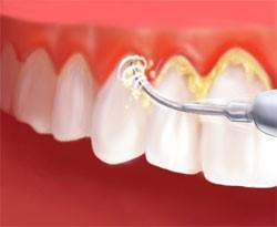dental arkadent 26 - جراحی لثه ( پریو )