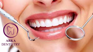 مزایای ایمپلنت دندان - کاشت دندان چیست