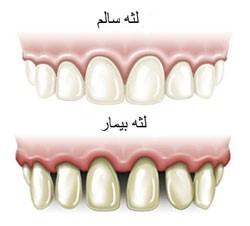dental tooth arkadent 25 1 - جراحی لثه ( پریو )
