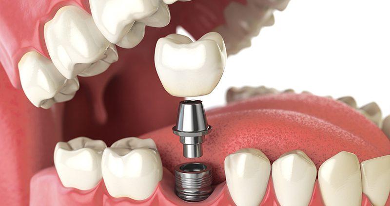 dental tooth arkadent 32 - جراحی لثه ( پریو )