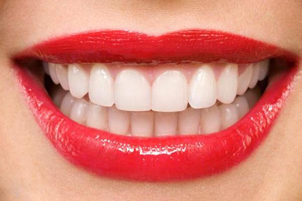 دندانپزشکی زیبایی - ونیر