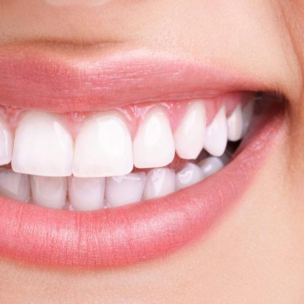 دندانپزشکی زیبایی - بلیچینگ