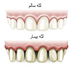 کلینیک دندانپزشکی آرکا - جراحی لثه