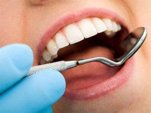 احتمال پوسیدگی مجدد دندان