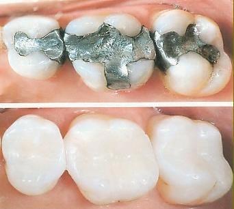 ترمیم دندان با آمالگام و کامپوزیت
