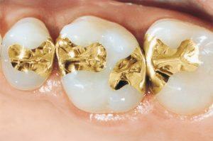 ترمیم دندان با طلا