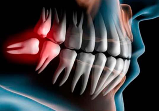 کلینیک دندانپزشکی آرکا - جراحی دندان عقل نهفته