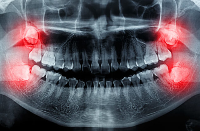 کلینیک دندانپزشکی آرکا - جراحی دهان و دندان