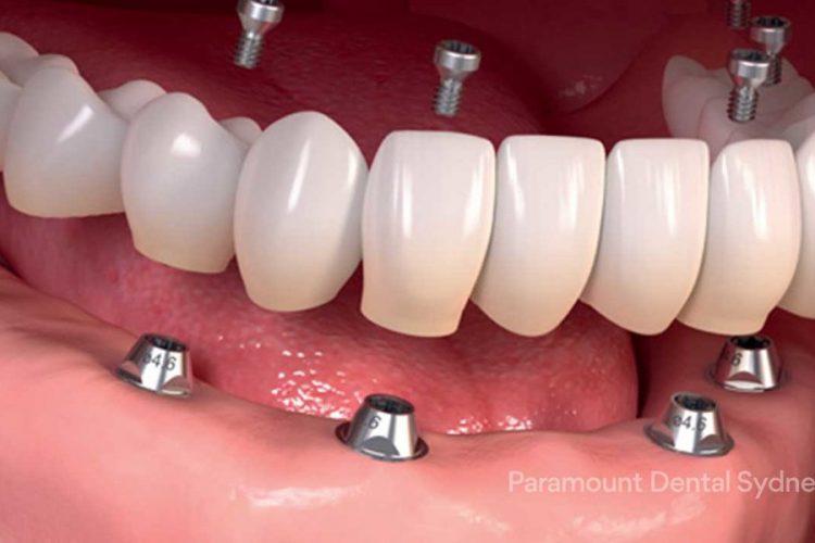 پروتز دندانی - اوردنچر