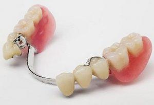 پروتز دندانی پارسیل