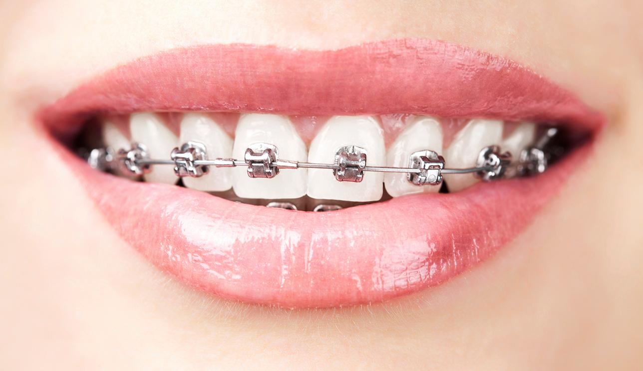 کلینیک دندانپزشکی آرکا - ارتودنسی دامون