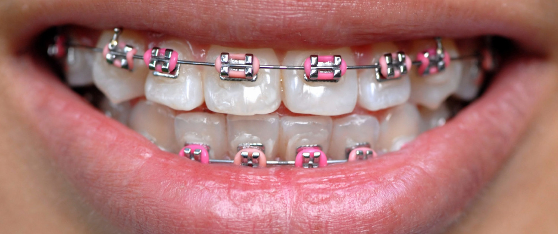 کلینیک دندانپزشکی آرکا - ارتودنسی سیمی