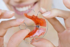 کلینیک دندانپزشکی آرکا - ارتودنسی متحرک