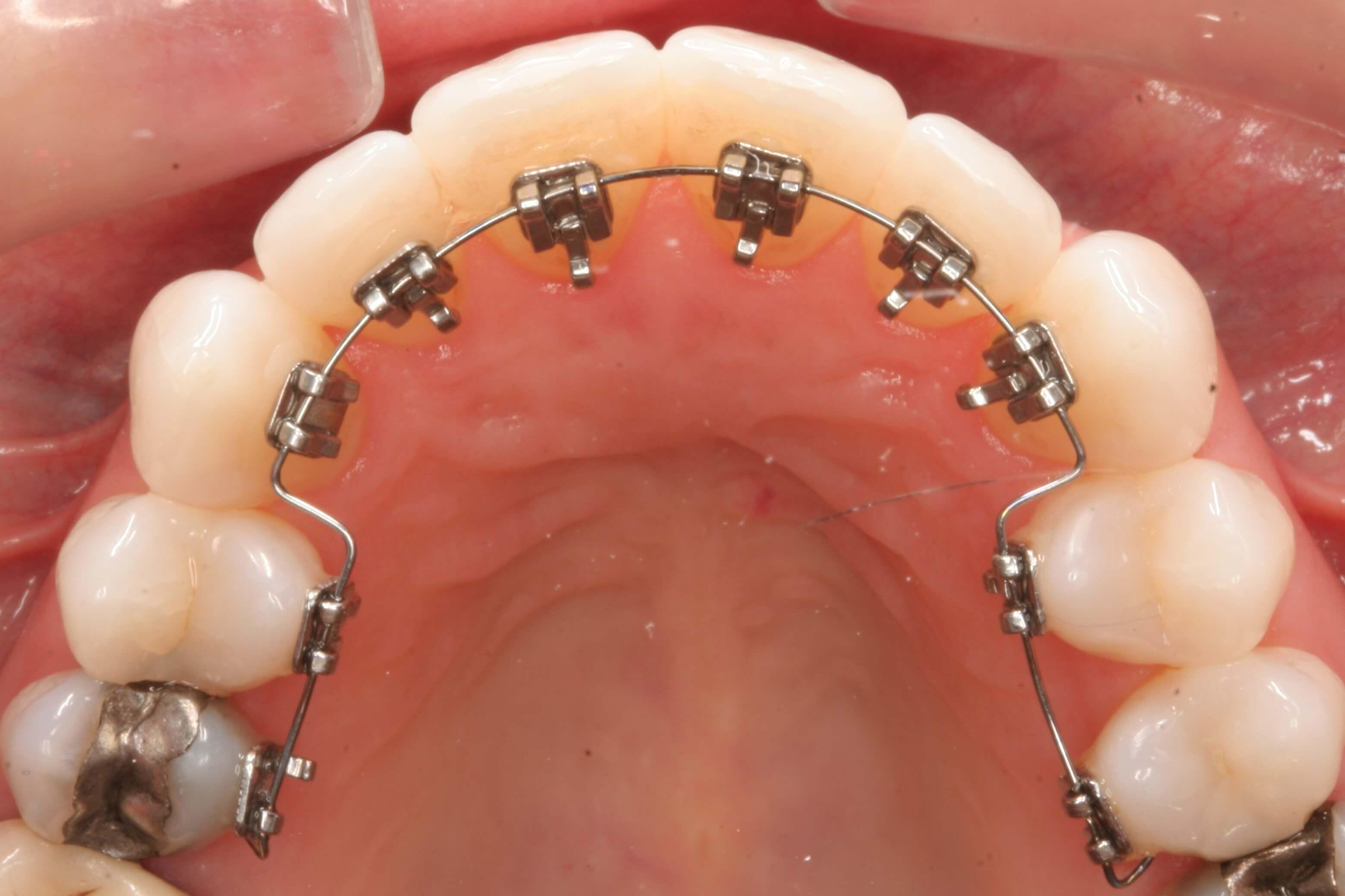 کلینیک دندانپزشکی آرکا - ارتودنسی نامرئی (لینگوال)