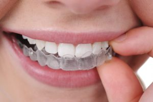 کلینیک دندانپزشکی آرکا - ارتودنسی نامرئی