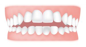 کلینیک دندانپزشکی آرکا - اپن بایت قدامی