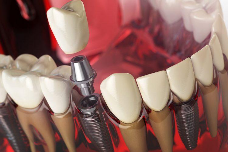 کلینیک دندانپزشکی آرکا - ایمپلنت دندان