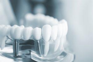 کلینیک دندانپزشکی آرکا - بهداشت ایمپلنت دندان
