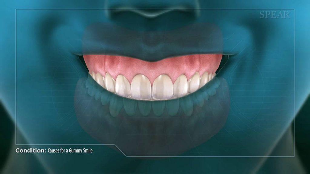 کلینیک دندانپزشکی آرکا - جراحي لثه