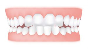 کلینیک دندانپزشکی آرکا - جلو بودن فک پایین