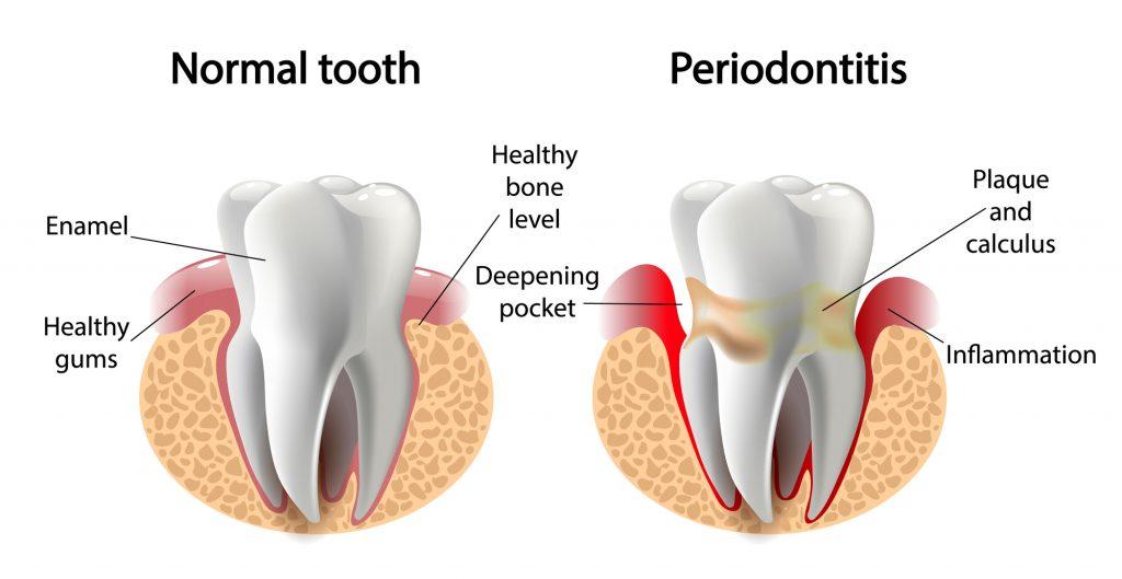 کلینیک دندانپزشکی آرکا - درمانهاي غيرجراحي لثه