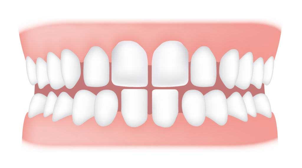 کلینیک دندانپزشکی آرکا - دندانهای فاصله دار