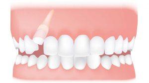 کلینیک دندانپزشکی آرکا - دندان نیش نهفته