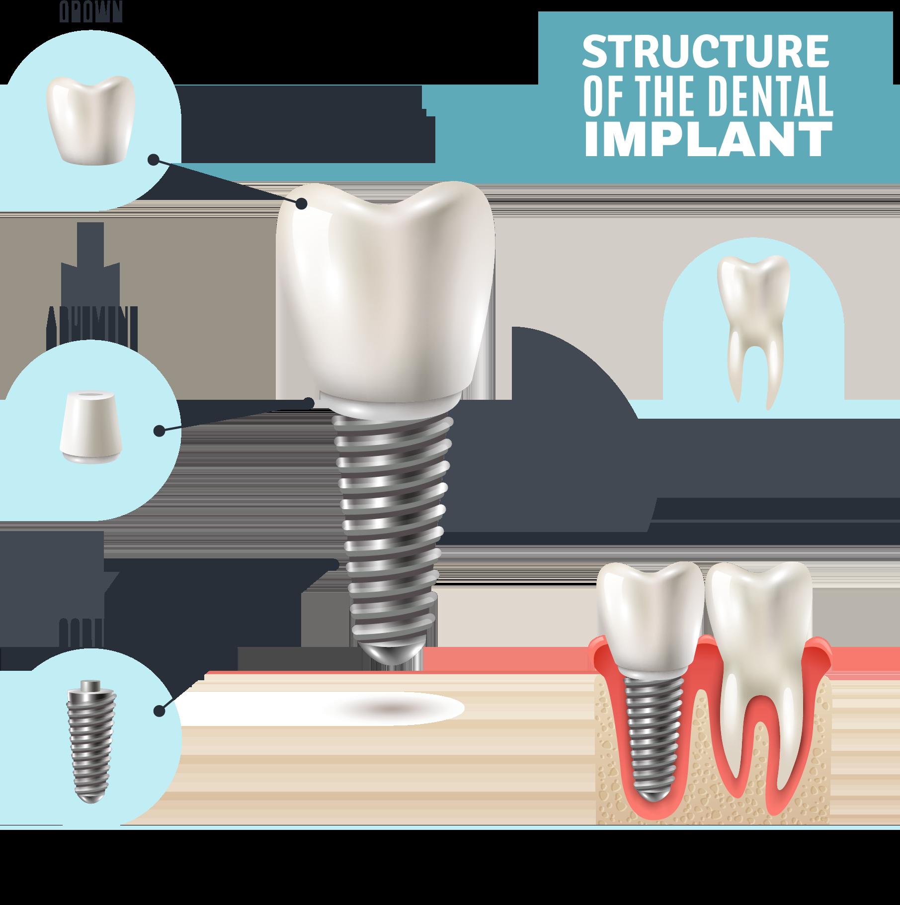 کلینیک دندانپزشکی آرکا - ساختار ایمپلنت دندان