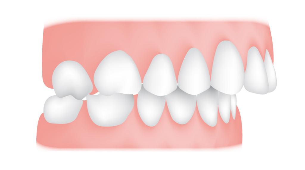 کلینیک دندانپزشکی آرکا - عقب بودن فک پایین