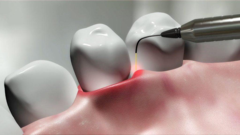 کلینیک دندانپزشکی آرکا - لیزر در جراحي لثه