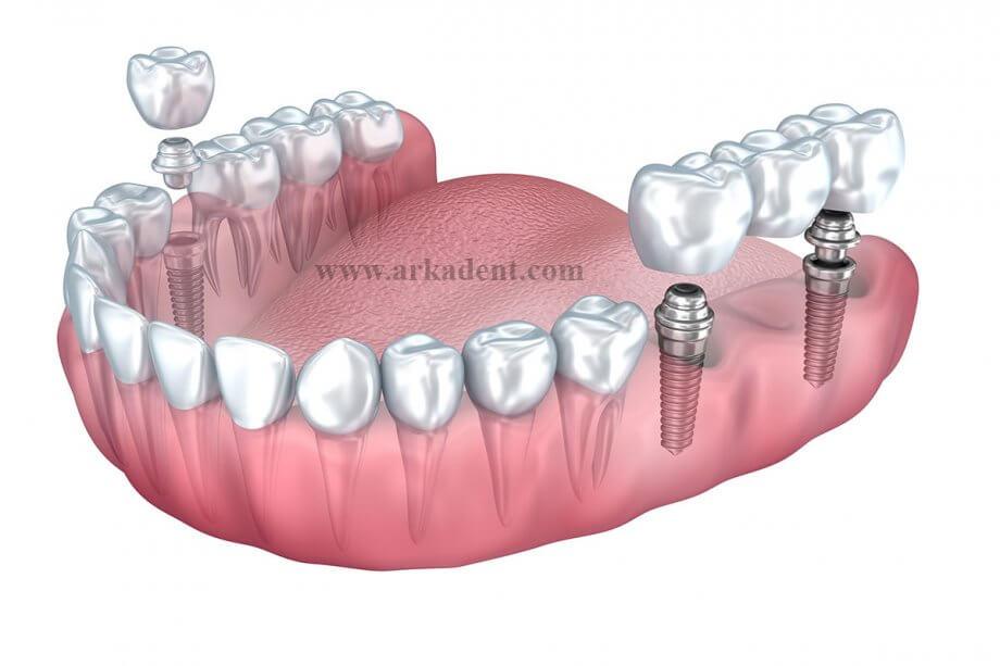 کلینیک دندانپزشکی آرکا - مزایای ایمپلنت دندان نسبت به سایر درمانهای جایگزین