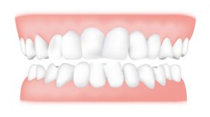 کلینیک دندانپزشکی آرکا - نامرتبی دندانها