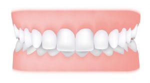 کلینیک دندانپزشکی آرکا - همپوشانی دندانها