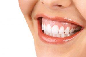 کلینیک دندانپزشکی آرکا - پایین بودن لثه