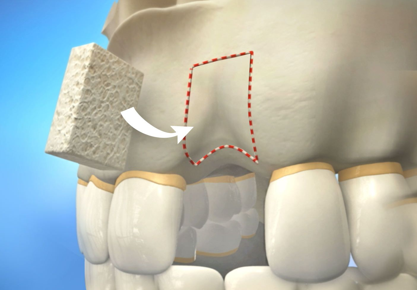 کلینیک دندانپزشکی آرکا - پیوند استخوان یا گرافت جهت ایمپلنت دندان