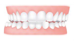 کلینیک دندانپزشکی آرکا - کراس بایت