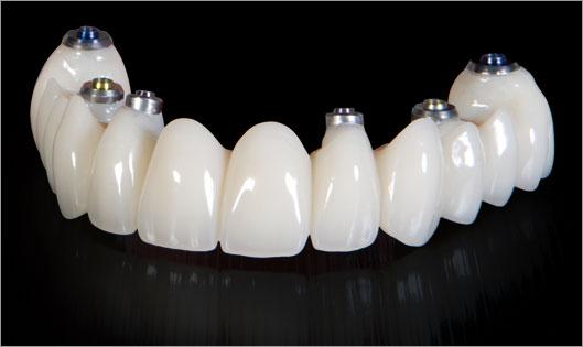 اوردنچر متکی بر ایمپلنت ( over denture )