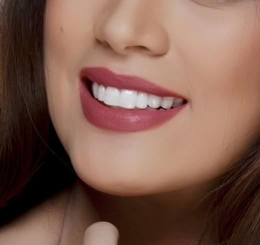 عوامل زیبایی لبخند