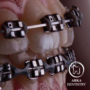 کلینیک دندانپزشکی آرکا-ارتودنسی۳