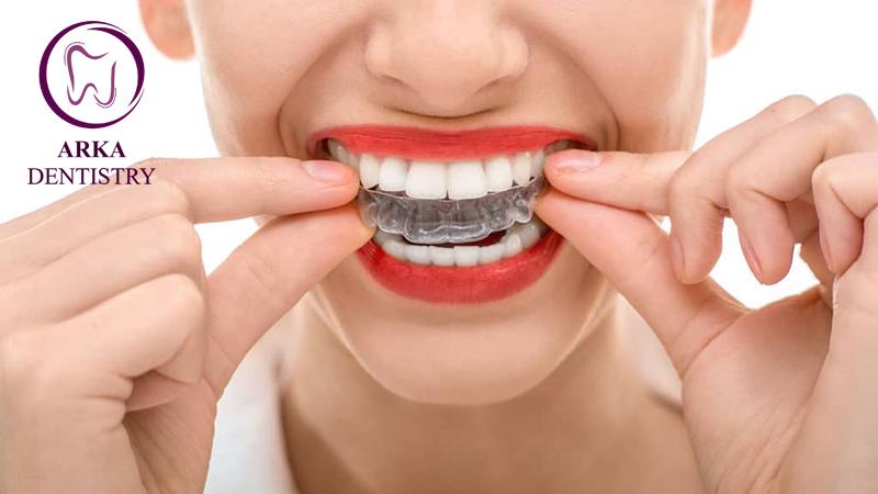 کلینیک دندانپزشکی آرکا - بلیچینگ ۱۱