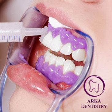 کلینیک دندانپزشکی آرکا - بلیچینگ ۱۲