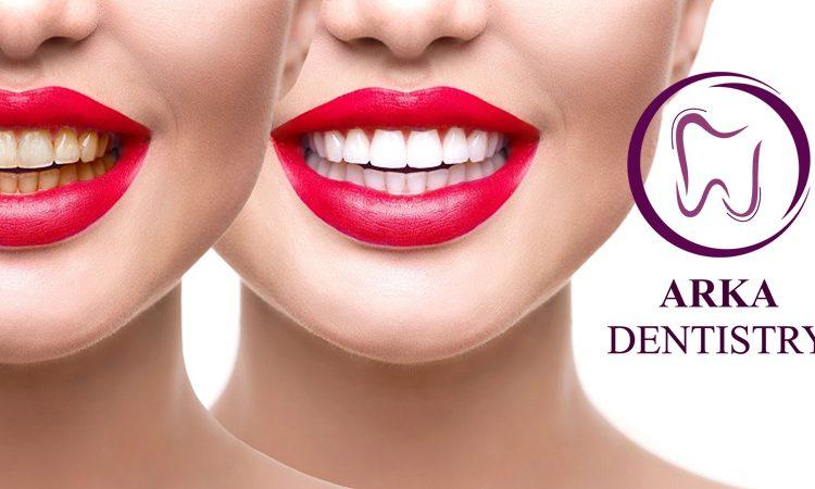 کلینیک دندانپزشکی آرکا - بلیچینگ ۱۳