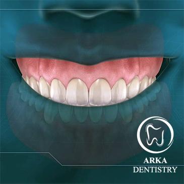 کلینیک دندانپزشکی آرکا-جراحی لثه۱