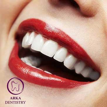 کلینیک دندانپزشکی آرکا - دندانپزشکی زیبایی ۲