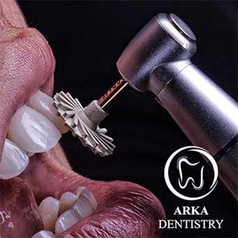 کلینیک دندانپزشکی آرکا - ونیر کامپوزیت۳